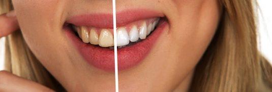 wybielanie zębów warszawa gdzie najlepiej